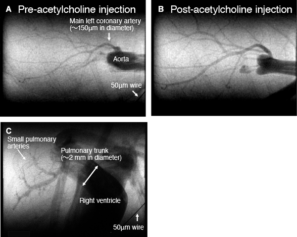 Fig. 1 In vivo coronary and cardiopulmonary microangiograms of the intact chest in an anesthetized mouse (heart rate: up to 500 beats/min): the coronary arteries (A, B) and the right ventricle and pulmonary arteries (C)
