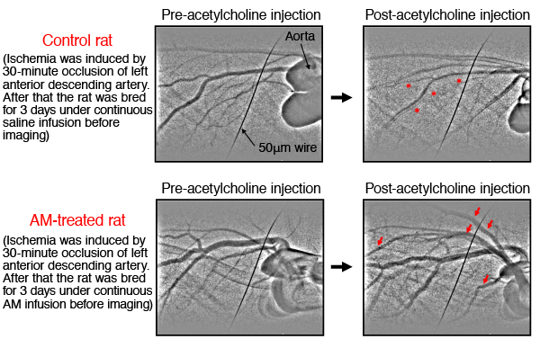 Fig. 2 Adrenomedullin (AM) improves the endothelial function of post-ischemic-reperfusion small coronary arteries of rats.
