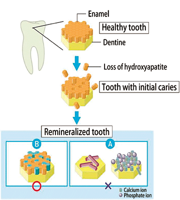 Reason for tooth decay prevention efficacy of chewing gum spring 8 fig 5 expected model of remineralization by pos ca ccuart Gallery